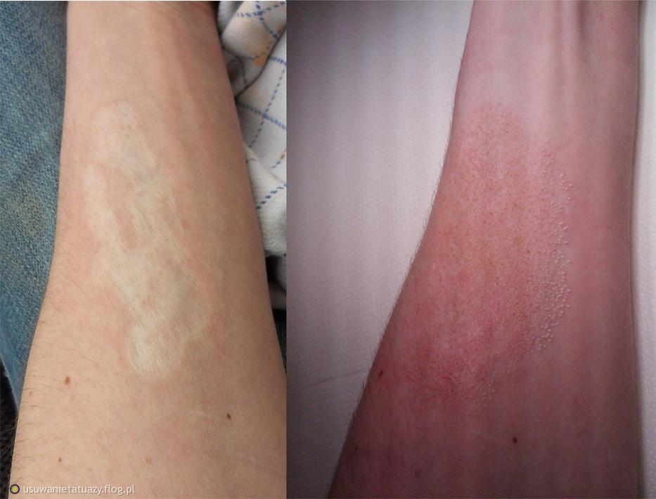 Usuwanie blizny po wypaleniu tatuażu 15 lat temu - laser frakcyjny eCO2