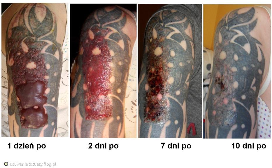 Tag Usuwanie Tatuaży Laserem Archiwum Fotobloga