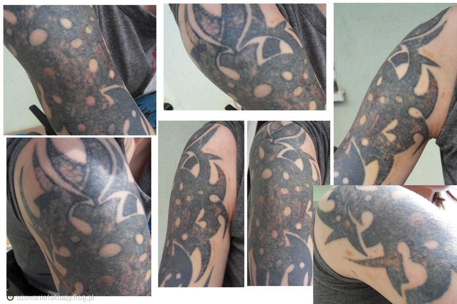 po 2. zabiegu - rozjaśnienie tatuażu do covera