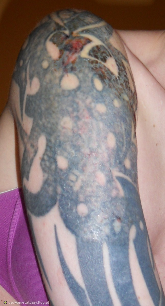 w trakcie usuwania tatuażu laserem