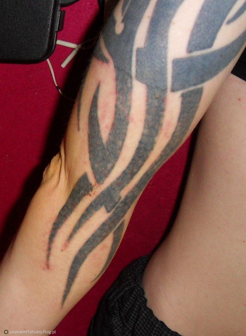 Tatuaż Na Prawej Ręce Archiwum Fotobloga Usuwanietatuazyflogpl